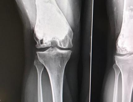 hello scary x-ray